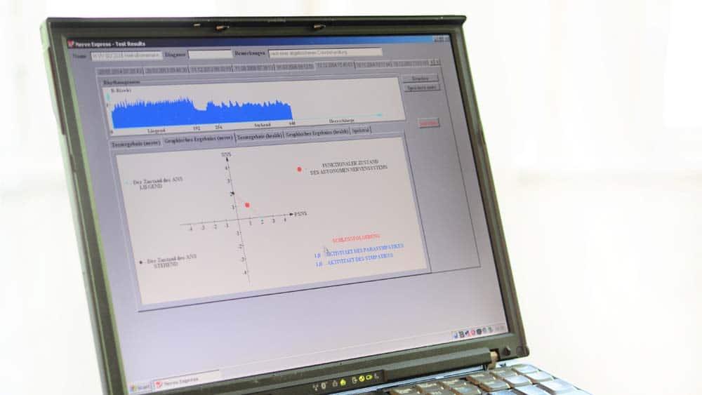 HRV-Analyse 1