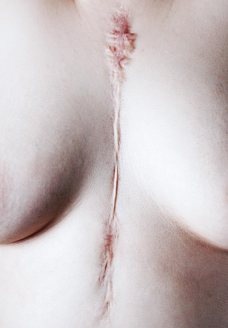 Wie lassen sich Narben klassifizieren? 2