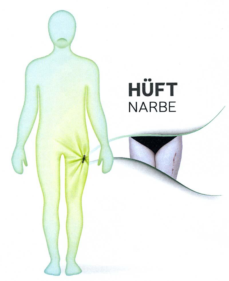 Welche Schmerzen können Narben verursachen? 1
