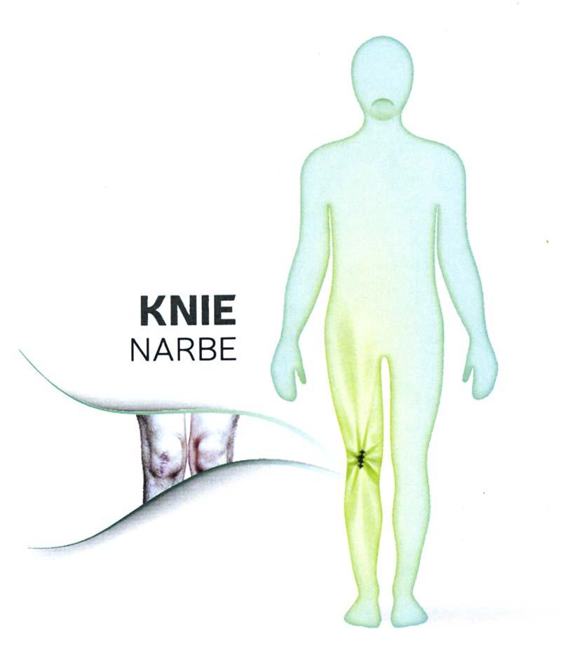 Welche Schmerzen können Narben verursachen? 2