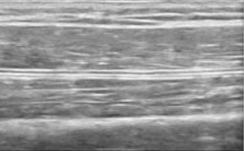 Elastographie-Ultraschall 1