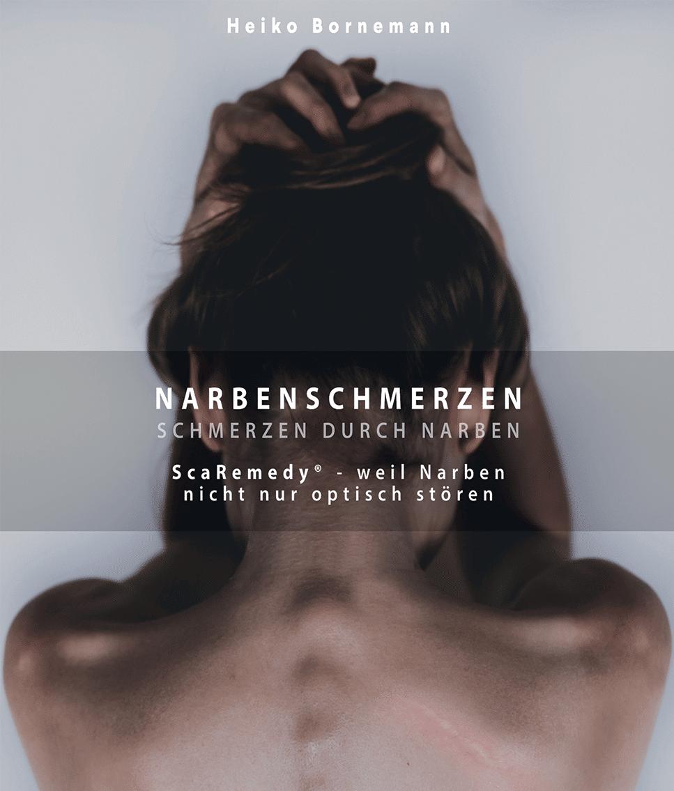Narbenschmerzen – Schmerzen durch Narben 2